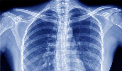 chto-takoe-rentgen