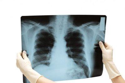 rentgen-grudnoj-kletki