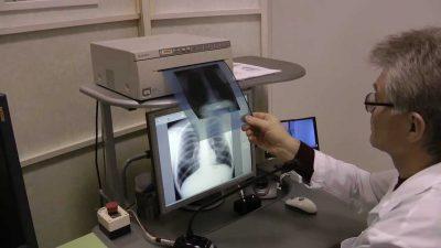 chem-otlichaetsya-flyuorografiya-ot-rentgena-legkih