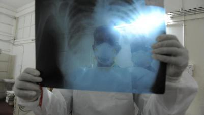 rentgen-na-domu