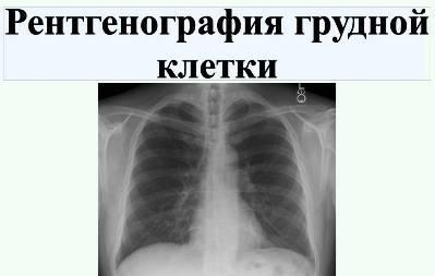 rentgenografiya