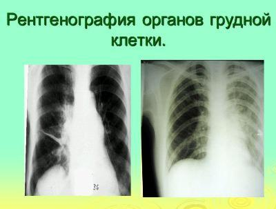 rentgenografiya-grudnoj-kletki
