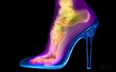 rentgenografiya-nizhnih-konechnostej