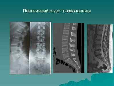 rentgen-pozvonochnika