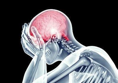 rentgen-golovnogo-mozga
