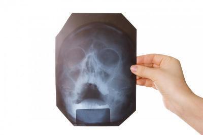 rentgen-pri-gajmorite