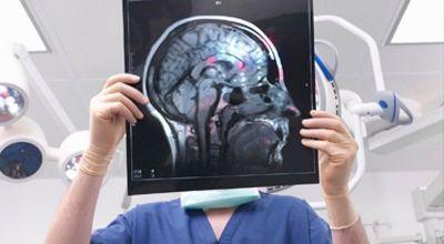 rentgen- mozga