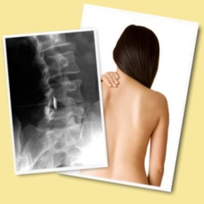 rentgen-s-funktsionalnymi-probami