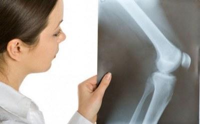 rentgen-kolennogo-sustava