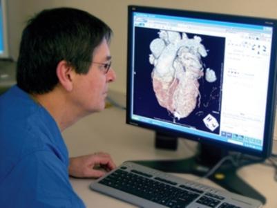 tomografiya-serdtsa