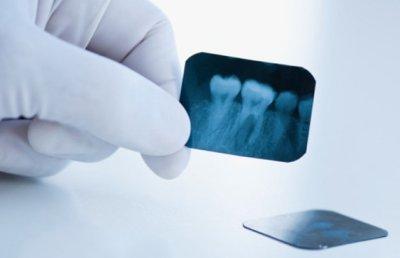 pritselnyj-snimok-zuba