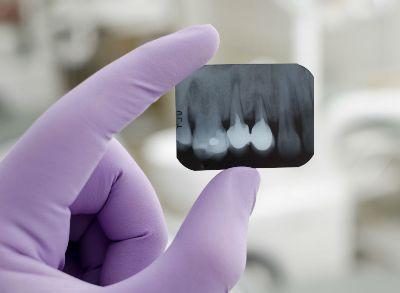 snimok-zuba