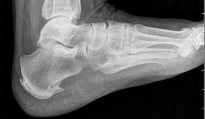rentgenografija-stopy