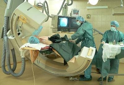 chto-takoe-angiografiya