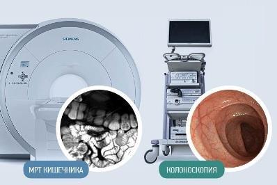 mrt-ili-kolonoskopiya