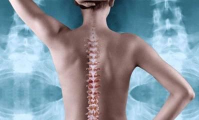 diagnostika-osteohondroza