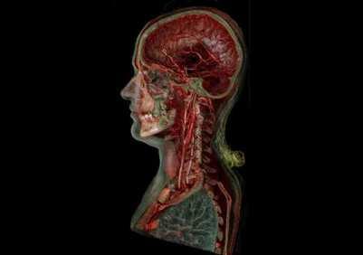 angiografiya-sosudov-shei
