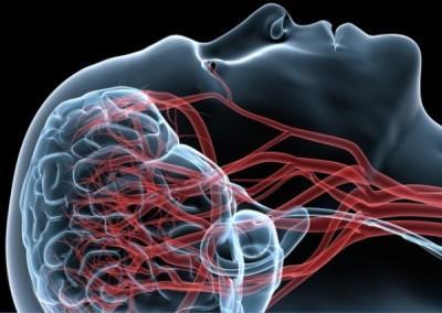angiografiya-shei