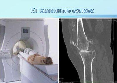 kt-kolennogo-sustava