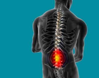 rentgen-gryzhi-pozvonochnika