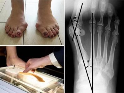rentgen-pri-ploskostopii