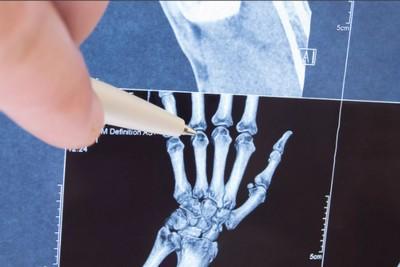 revmatoidnyj-artrit-na-rentgene