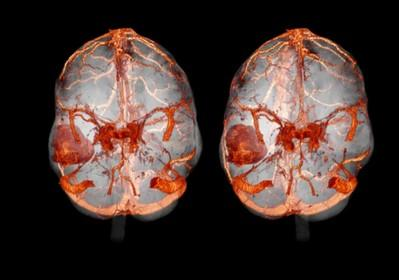 kt-golovnogo-mozga-s-kontrastom