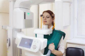 tomografiya-zubov