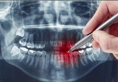 ortopantomogramma-zubov