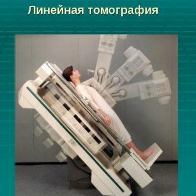 linejnaya-tomografiya