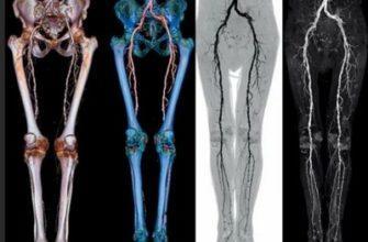 angiografiya-sosudov-nizhnih-konechnostej
