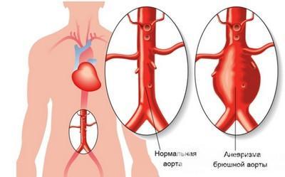 узи аорты